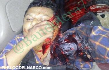 Foto, listo para el Topon, asi terminan todos... el enfrentamiento en Reynosa Tamaulipas que dejo 8 muertos el Viernes